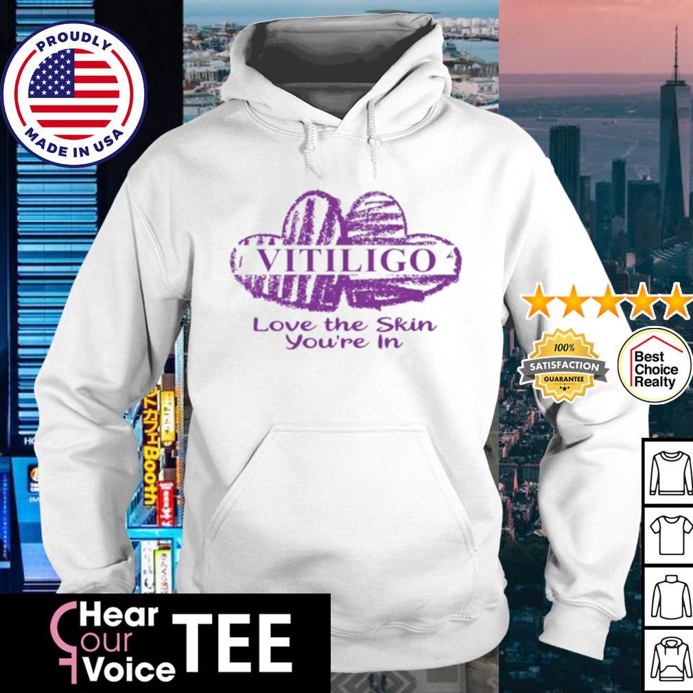 Vitiligo Love The Skin You're in s hoodie