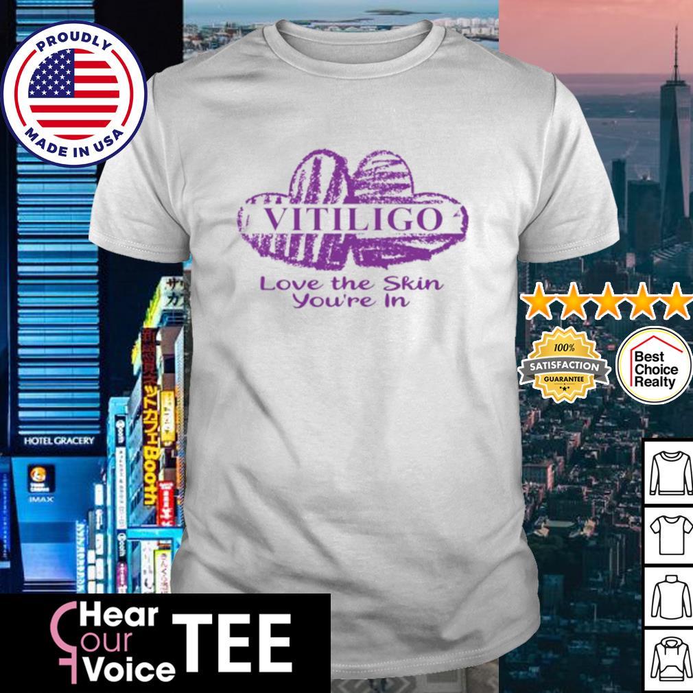 Vitiligo Love The Skin You're in shirt